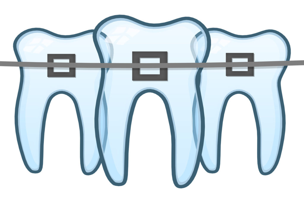 BerwickDentalCentre-Braces