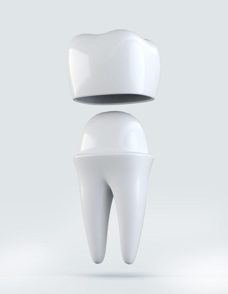 Berwick Dental Centre - Crowns