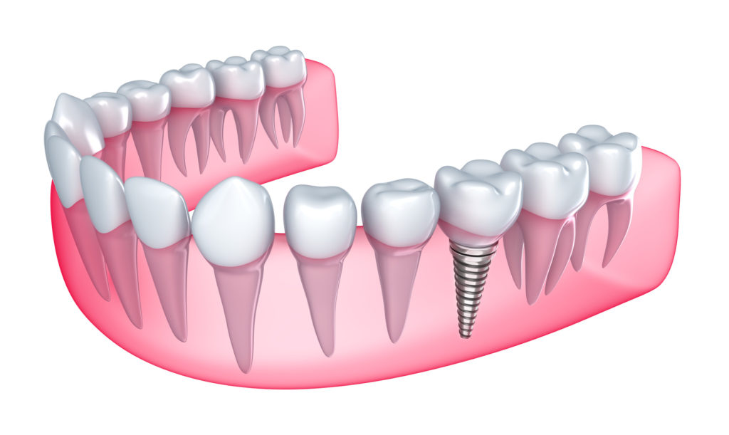 Berwick Dental Centre-Dental Implants