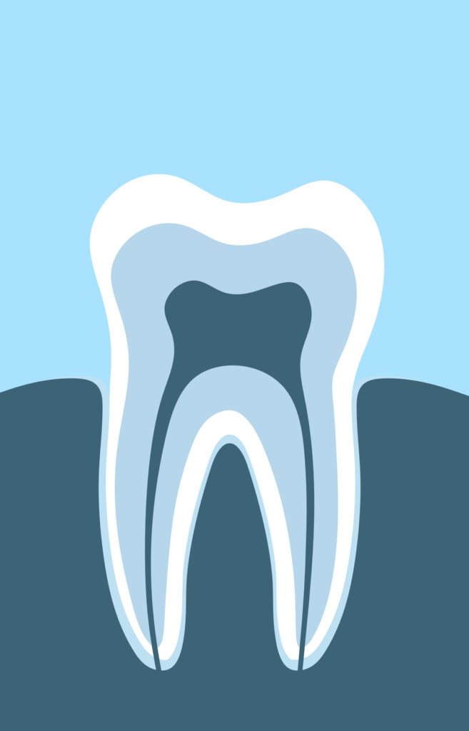 Berwick Dental Centre - Root Canal