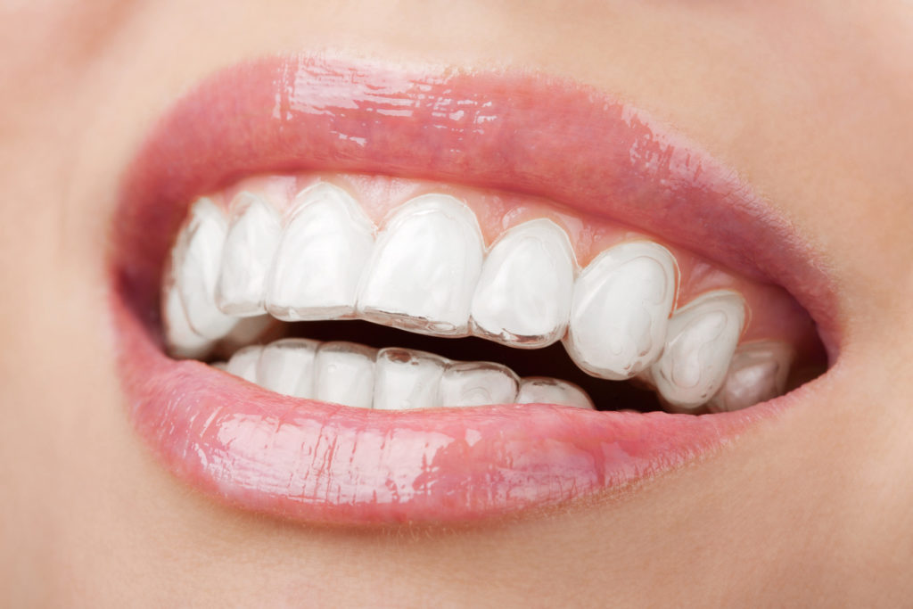 Berwick Dental Centre - Teeth Whitening