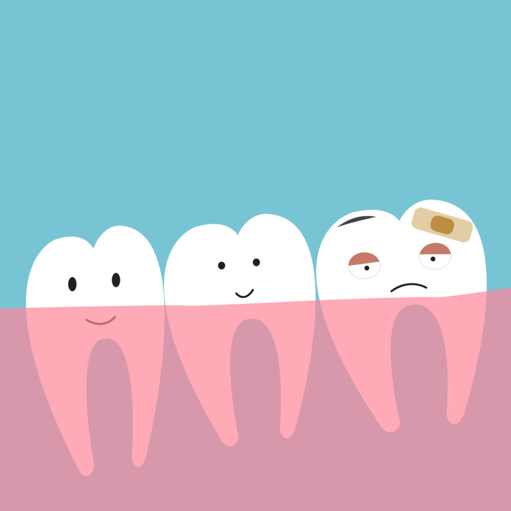 Berwick Dental Centre - Wisdom Teeth Removal